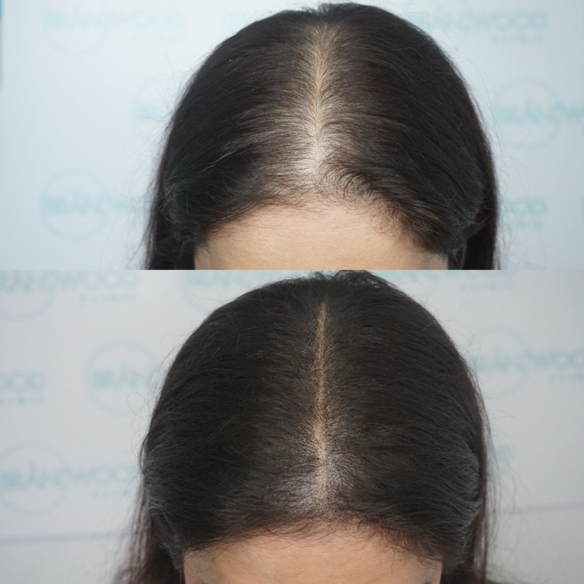 Ready to Style Volumiser: Before and After