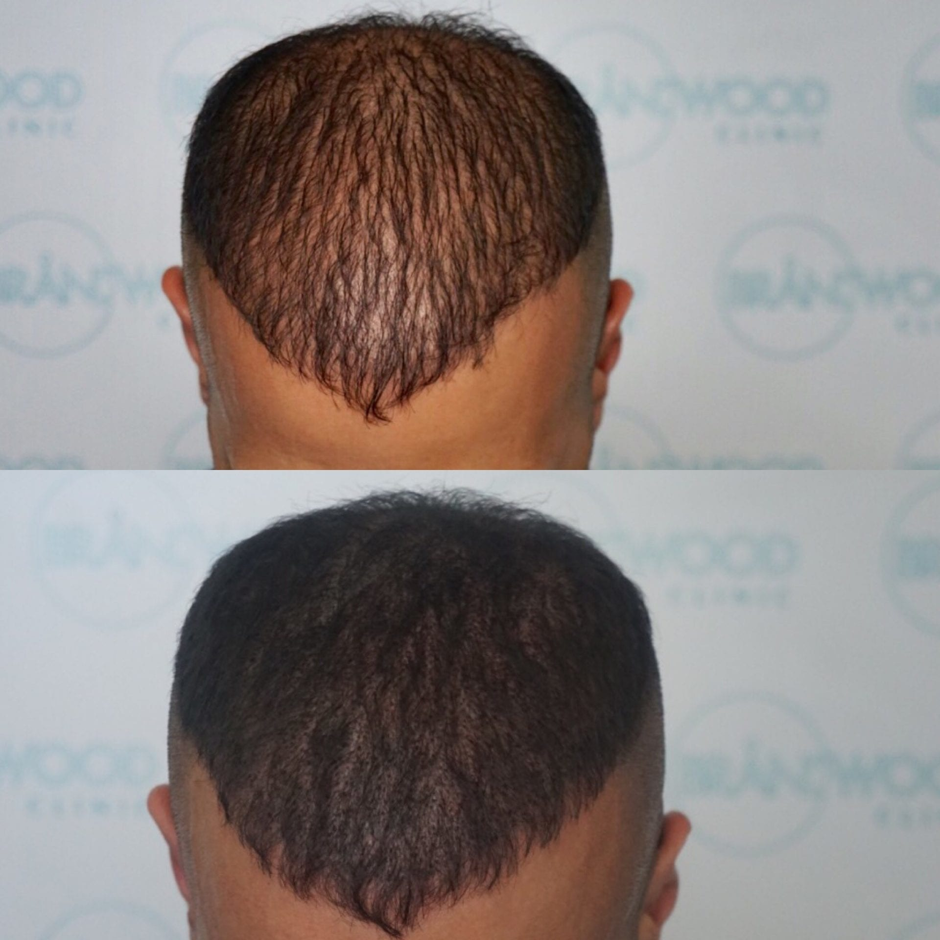 Rafi: Thinning Hair Treated with SMP